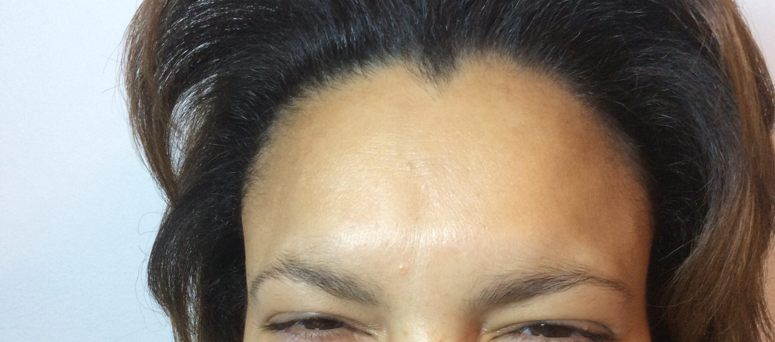 Efter Botox behandling af Bekymrings rynke