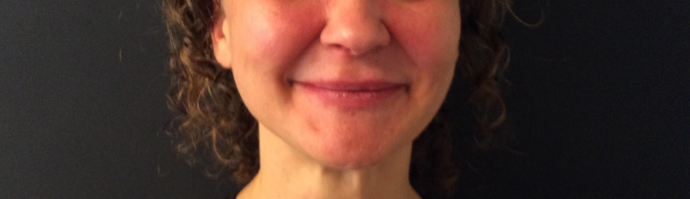 Efter Belotero-Revive behandling af kinder